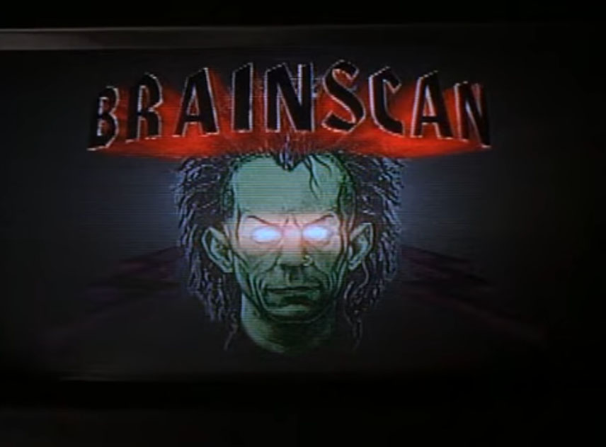 brainscan1